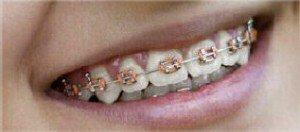 Orthodontics Dental Care